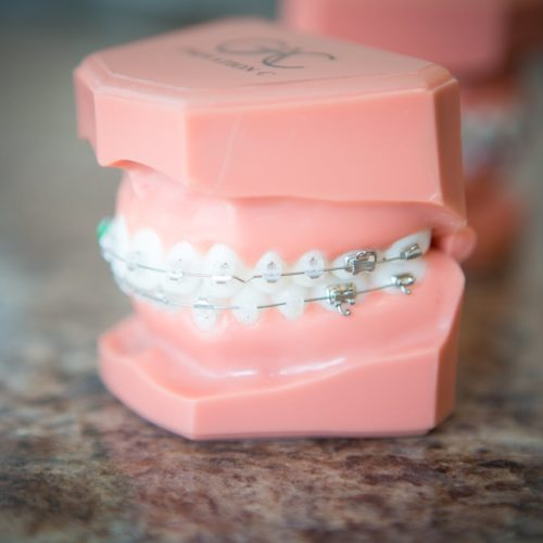 Shoe-Orthodontics-Hanover-Braces-Hanover-Invisalign-68-of-70-500x500