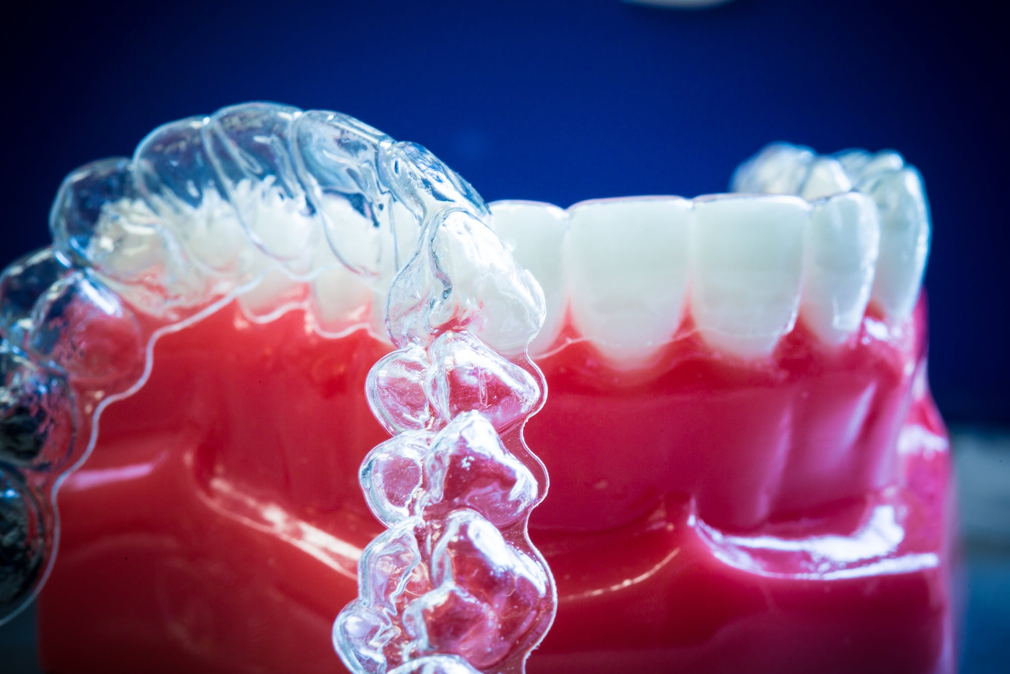 Everything You Need to Know About Adult Invisalign