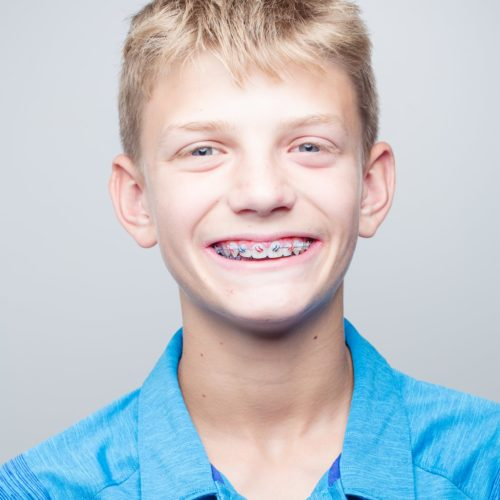 Shoe-Orthodontics-Patient-Portraits-Hanover-Braces-Invisalign-14-of-17-500x500