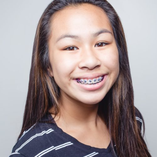 Shoe-Orthodontics-Patient-Portraits-Hanover-Braces-Invisalign-17-of-17-500x500