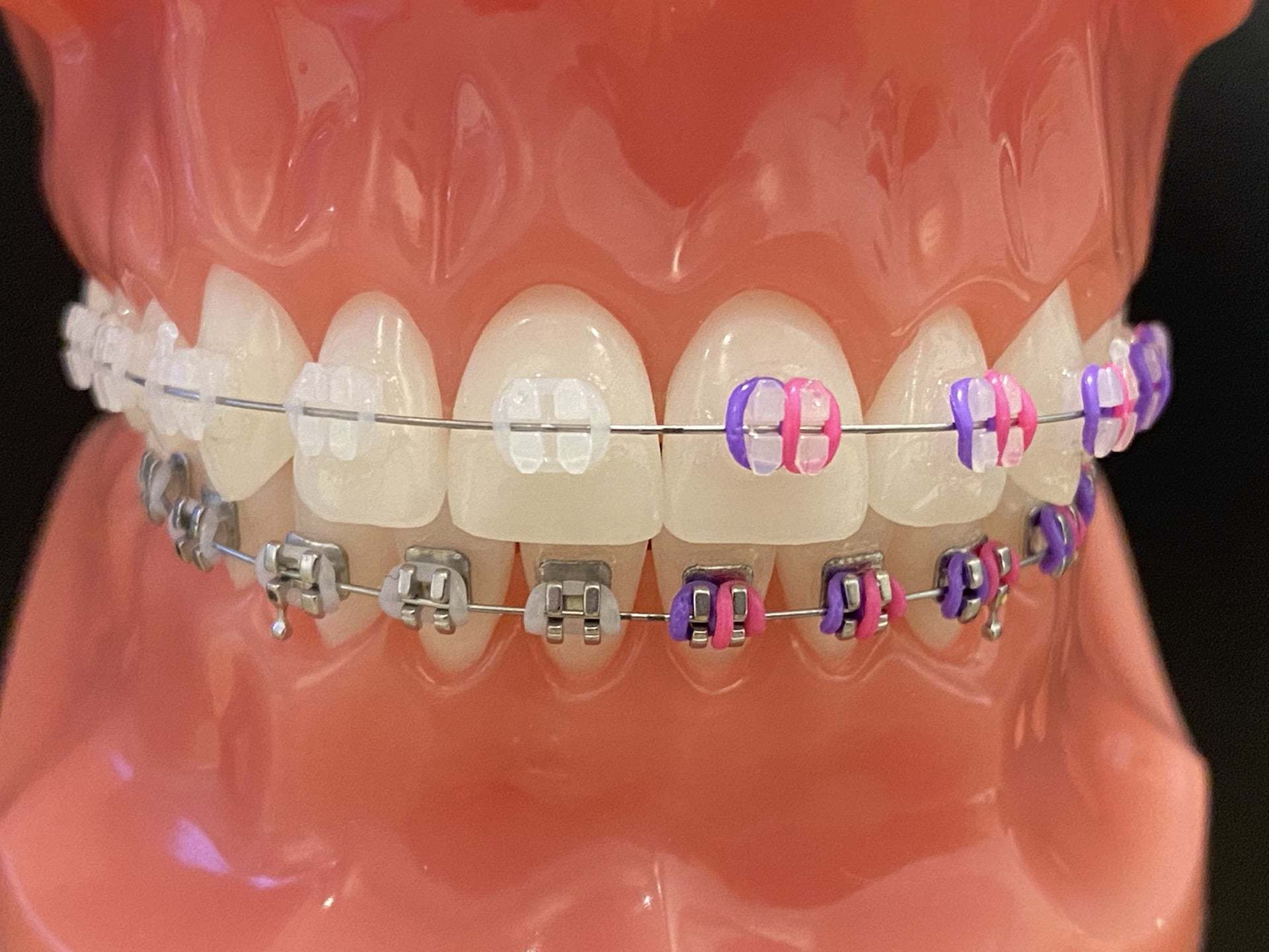 Braces (Clear Upper and Metal Lower)